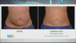 CoolSculpting at Zel Skin and Laser Specialist