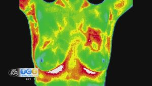 Breast Thermography at Rapha Health & Wellness